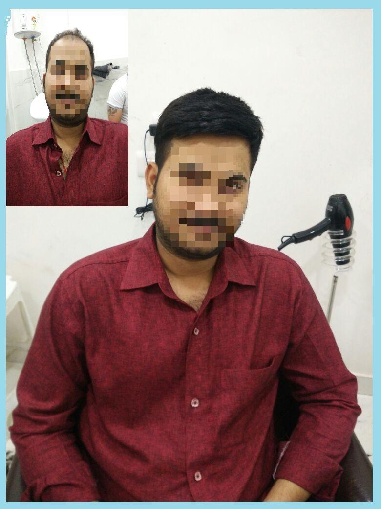 hair bonding in delhi