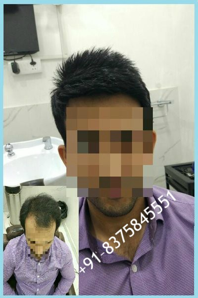 hair fixing in delhi
