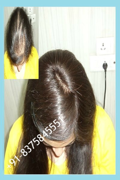 non surgical hair replacement for women
