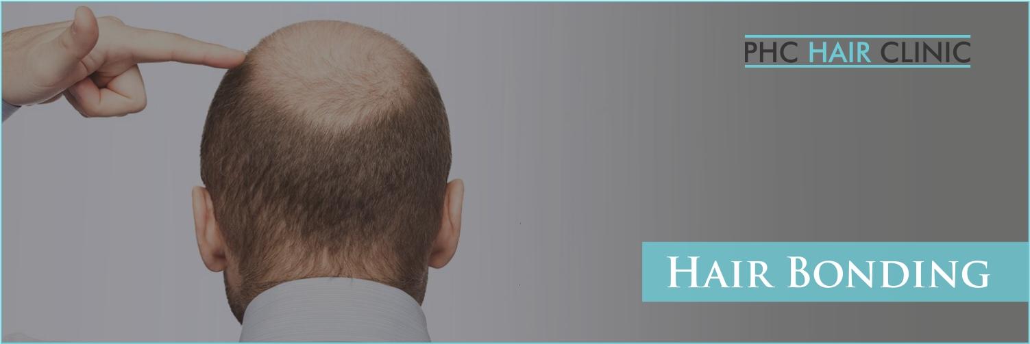 Hair Bonding in Delhi - PHC Hair Clinic