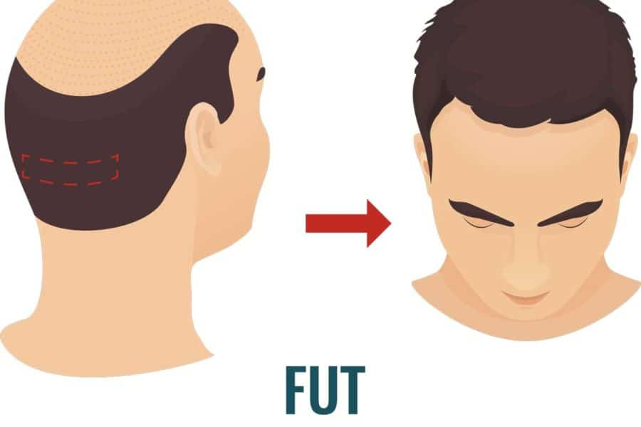 hair transplant system