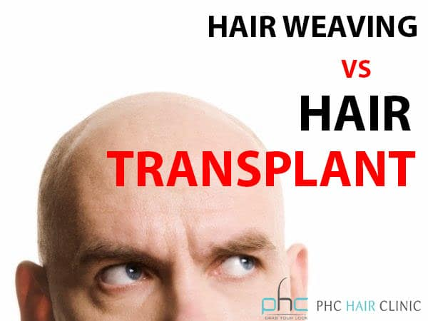 hair weaving vs hair transplant