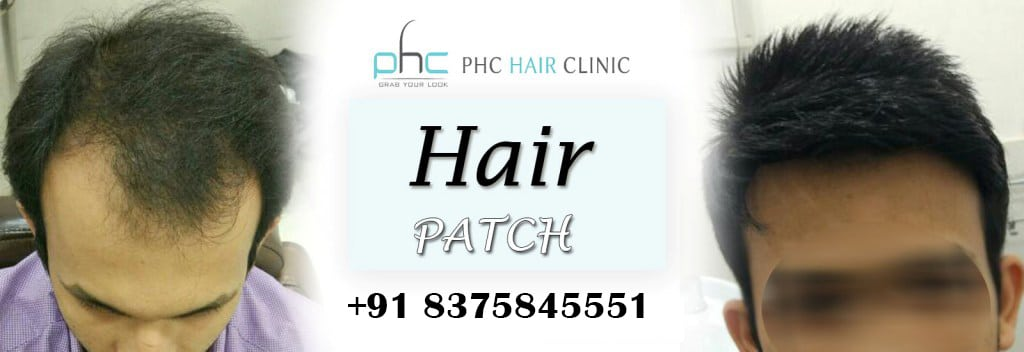 clip system hair patch